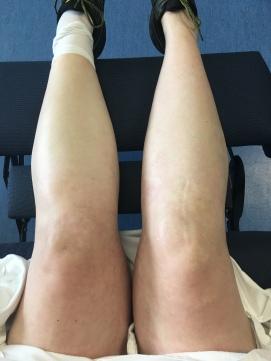 knees: pre-op