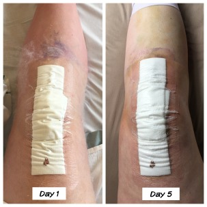 knee swelling week 1