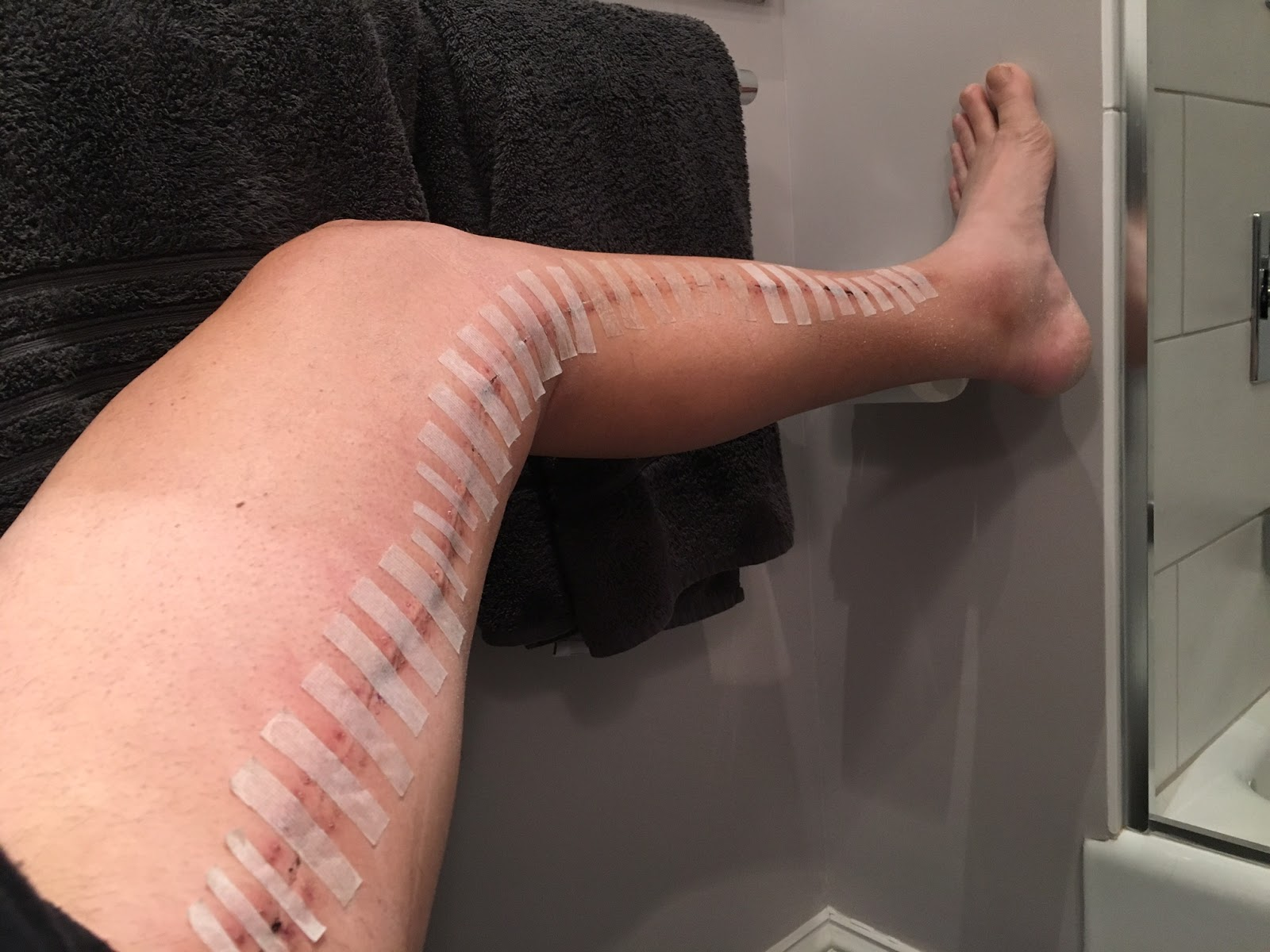 Femoral Popliteal Bypass: My Recovery Timeline from Fem-Pop ...